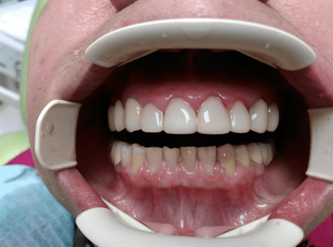 ванной гардеробной коронка мост на зубы фото все
